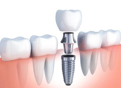 Implant Dentaire Paris 14 Dr Alain Carre Dentiste Paris 14